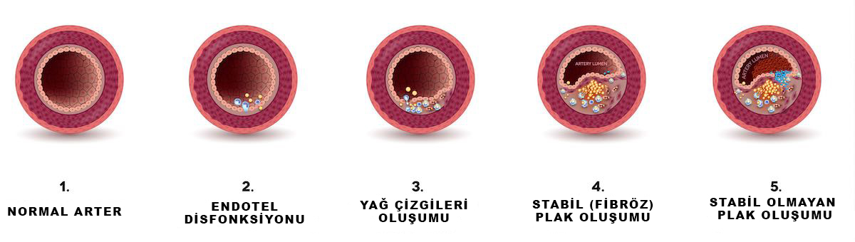 ateroskleroz-gorsel-s