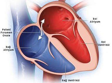 Erişkinlerde Doğumsal Kalp Hastalıkları